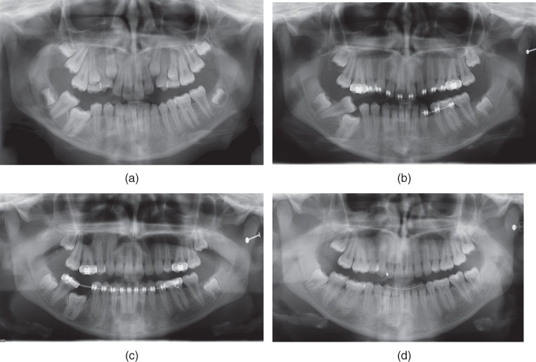 a) Radiograph for Severe infraocclusion of the mandibular right first permanent molar.; b) Radiograph for tipping of the adjacent teeth.; c) Radiograph for Space gaining and surgical exposure of the infraoccluded permanent molar.; d) Radiograph for molar has erupting into occlusion.