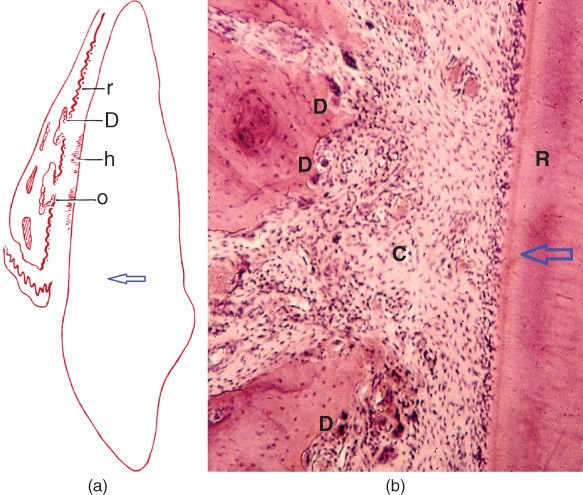 a) Diagram for location of bone resorption adjacent to the apical third of a maxillary canine.; b) Illustration of direct resorption with osteoclasts along the bone surface and absence of epithelial remnants in adjacent periodontal tissue.