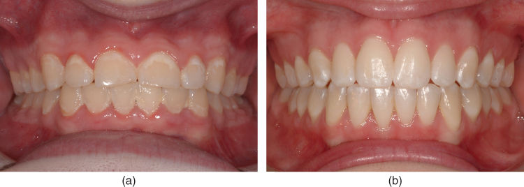 a) Photo showing general WSLs with fixed appliance.; b) Photo showing normal enamel conditions.