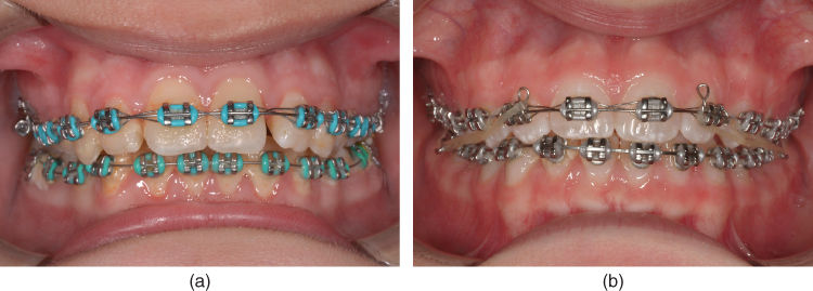 a) Photo showing a patient with fixed appliance showing general gingival inflammation and bad oral hygiene.; b) Photo showing patient showing fixed appliance.