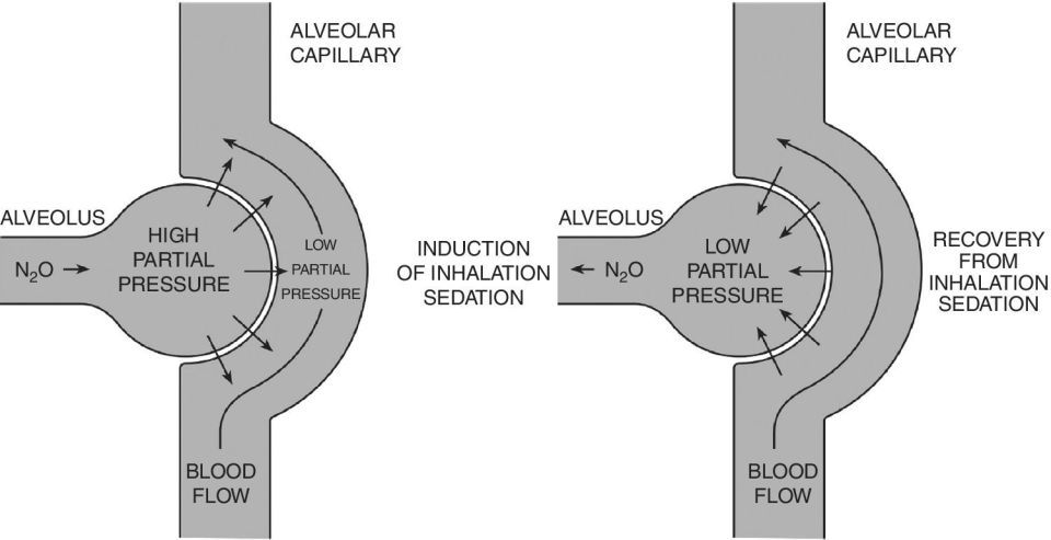 Schematic representations illustrating the movement of nitrous oxide gas down the partial pressure gradient during induction (left) and recovery from inhalation sedation (right).