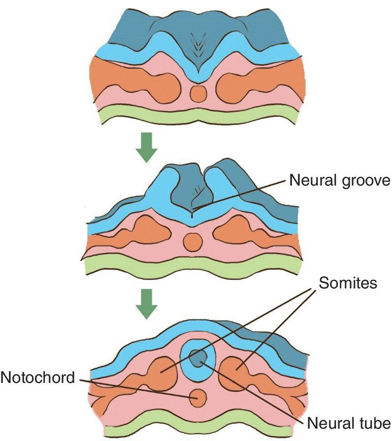 Illustration of the neurulation with parts labeled Neural groove, Somites, Neural tube, and Notochord.