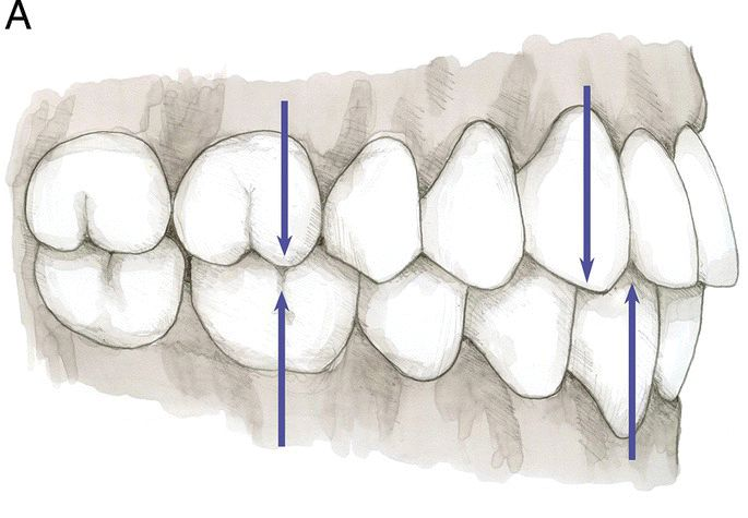 Right buccal view, frontal view, and left buccal view (top: left to right) and maxillary and mandibular occlusal view (bottom: left to right) displaying class I molar and canine relationship.