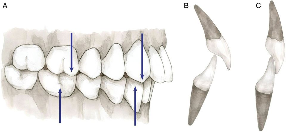 3 Illustrations displaying class II: Molar and canine relationship depicted by upward and downward arrows (left); incisor relationship, division 1 (middle); and incisor relationship, division 2 (right).