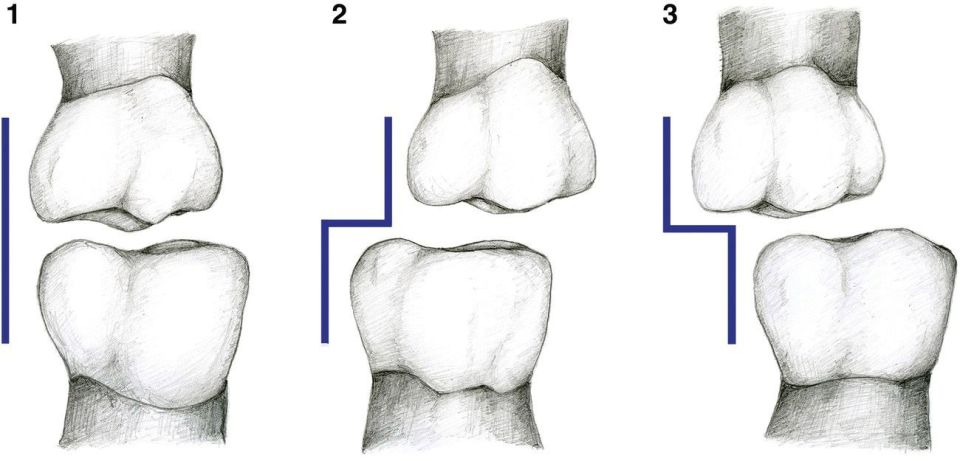 Sketches of teeth displaying 3 panels for flush terminal plane (left), distal step (middle), and mesial step (right).
