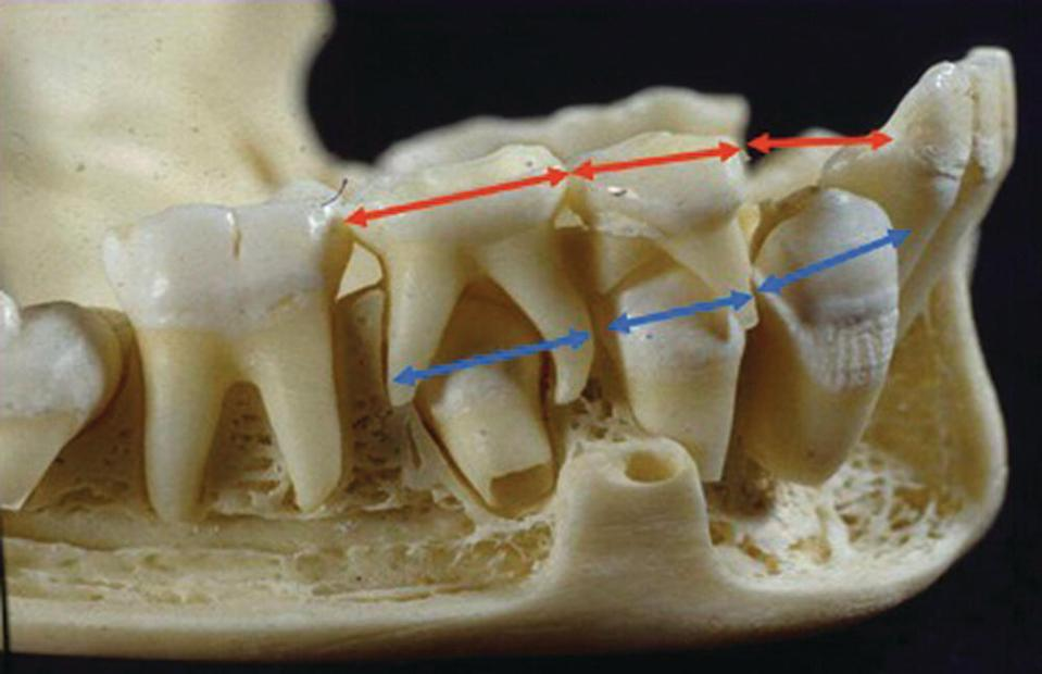 Leeway spaces: the differences in the mesiodistal width between the primary teeth and their permanent successors (depicted by double headed arrows).