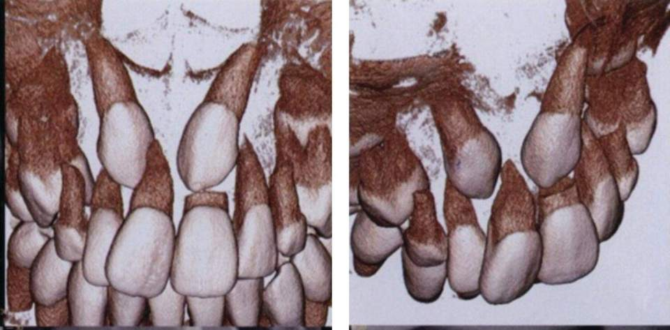 Line drawings of the development of class I molar relationship during early mixed dentition (depicted by arrows).