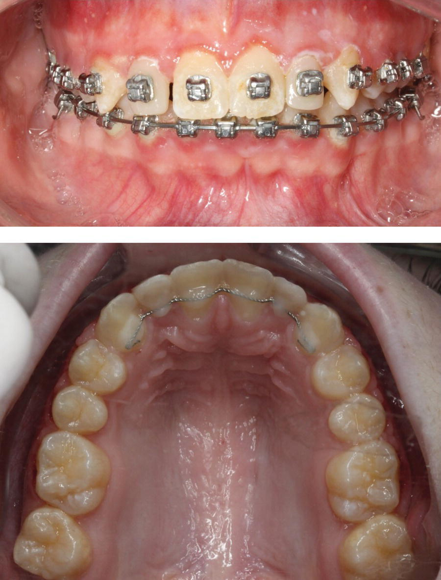 Anterior view of the dentition with braces (top) and occlusal view of the maxillary arch with fixed lingual retainer (bottom).
