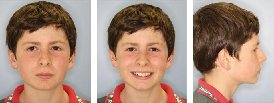 Full face at rest (left), full face with a smile (middle), and right lateral view of profile (right) of a boy.
