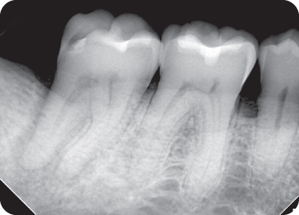 Illustration of radiograph of extent of rarefaction in the distal root of tooth.