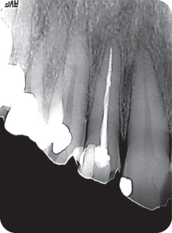 Radiograph of a tooth.