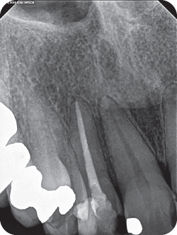 Radiograph of teeth #7 and #8 with normal apex.