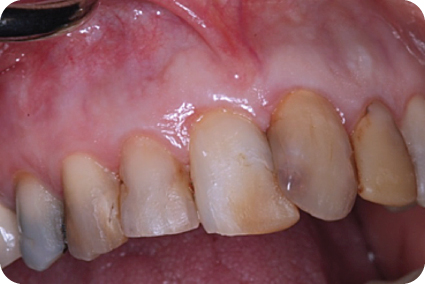 Photograph showing a normal gingiva.