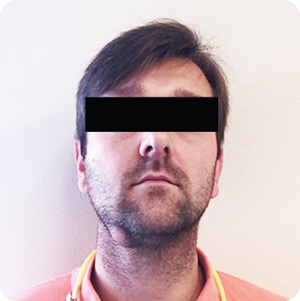 Photograph showing Submandibular swelling of LRQ and associated facial asymmetry in a male.