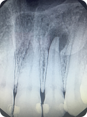 Illustration of Preoperative radiograph of tooth #10.