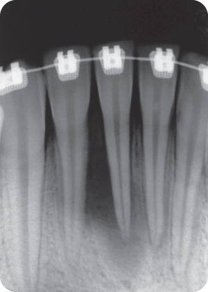 Illustration of Preoperative radiograph of teeth #23-27.
