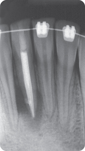 Illustration of Postoperative angled radiograph showing obturation of the buccal and lingual canals.
