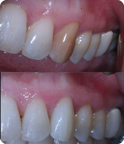 Photograph showing comparison pre- and post-internal bleaching of tooth #11.