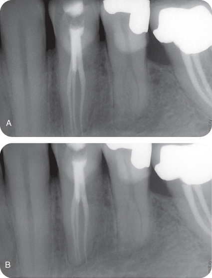 Illustration of Postobturation radiograph showing three canals with three different exit portals.; Illustration of Postobturation radiograph showing three exit portals.