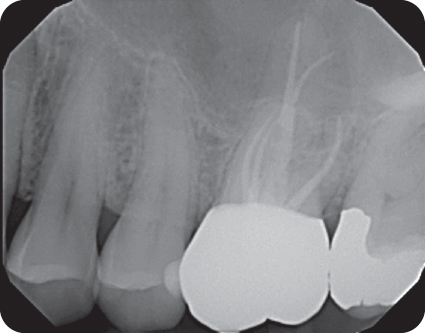 Illustration of radiograph of Maxillary molar tooth #14 with the second palatal canal and MB2.