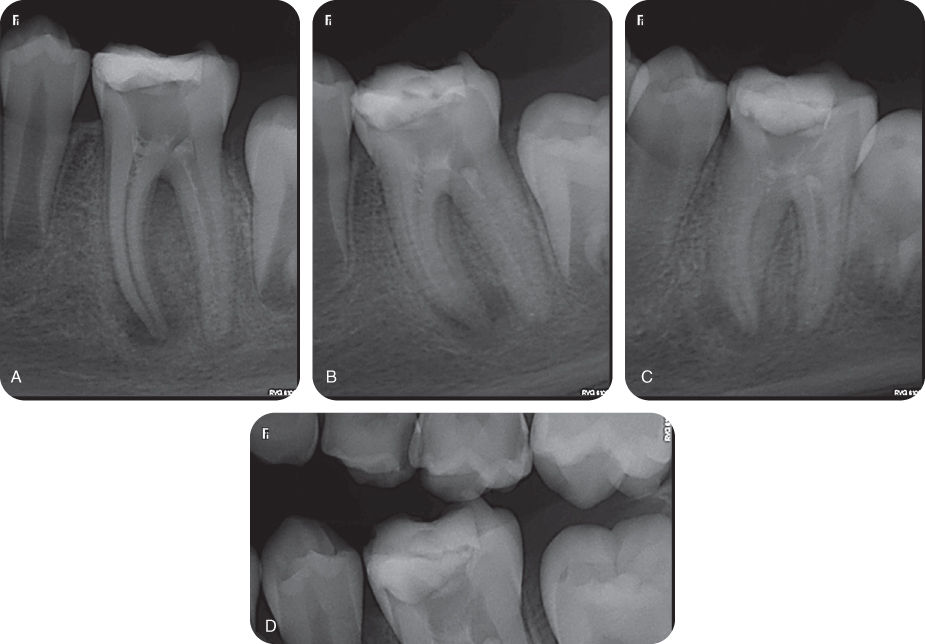 Illustration of Preoperative images showing periapical Orthoradial angulation radiograph.; Illustration of Preoperative images showing periapical mesial angulation radiograph.; Illustration of Preoperative images showing periapical distal angulation radiograph.; Illustration of Preoperative images showing periapical bitewing radiograph.