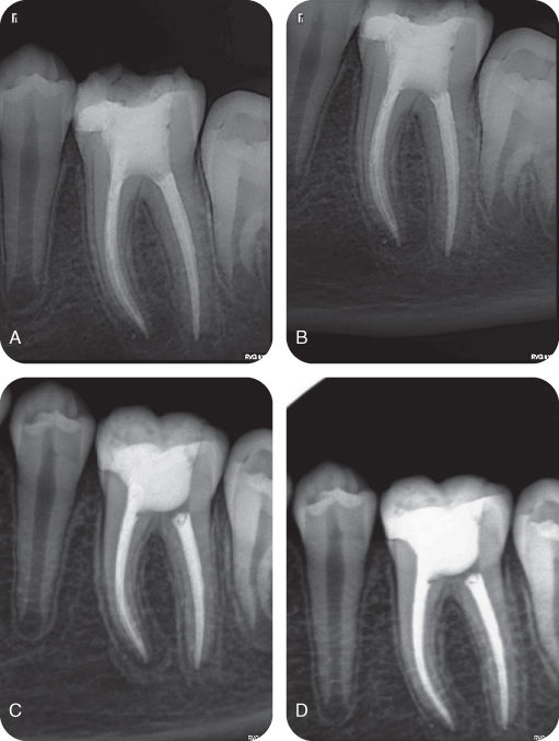Illustration of Recall radiographs after 3-month interval.; Illustration of Recall radiographs after 8-month interval.; Illustration of Recall radiographs after 12-month interval.; Illustration of Recall radiographs after 14-month interval.