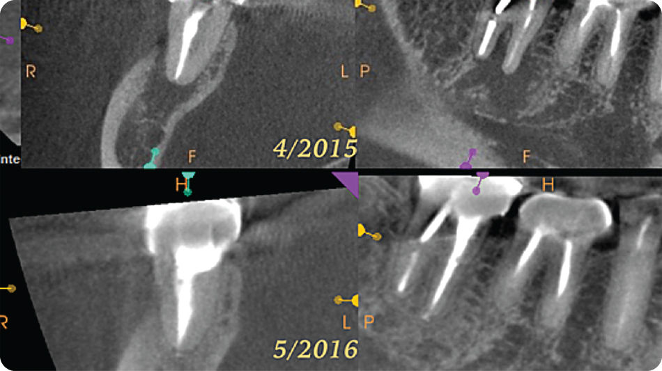 Illustration of Comparison of 3D CBCT images taken preoperatively (top) and at 1-year follow-up (bottom) showing complete osseous healing of the periapical lesion.