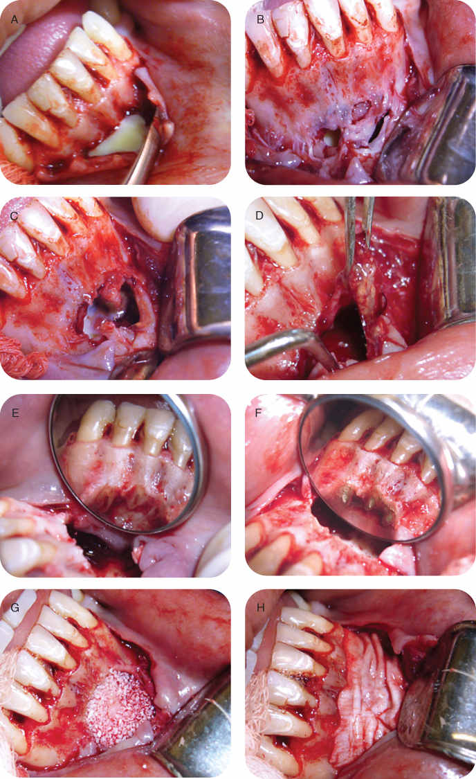 Photo showing Root-end surgery on teeth # 23, 24, and 25: Purulent exudate seen as the flap was being reflected near the apical area of teeth #23, 24, and 25.; Photo showing Root-end surgery on teeth # 23, 24, and 25: Inflamed periosteum.; Photo showing Root-end surgery on teeth # 23, 24, and 25: Periradicular lesion.; Photo showing Root-end surgery on teeth # 23, 24, and 25: Removed tissue attached to the apex of tooth #24.; Photo showing Root-end surgery on teeth # 23, 24, and 25: Root-end preparation.; Photo showing Root-end surgery on teeth # 23, 24, and 25: Root-end filling with white MTA. ; Photo showing Root-end surgery on teeth # 23, 24, and 25: Bio-Oss placed into the bony crypt.; Photo showing Root-end surgery on teeth # 23, 24, and 25: Bio-Gide membrane placed.