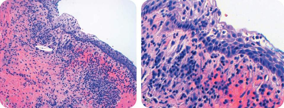 Illustration of Histologic slides of the biopsy tissue revealed a cyst lined by non-keratinized stratified squamous epithelium: Original magnification x10.; Illustration of Histologic slides of the biopsy tissue revealed a cyst lined by non-keratinized stratified squamous epithelium: Original magnification x40.