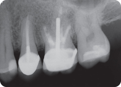 Illustration of buccal roots of tooth #14.
