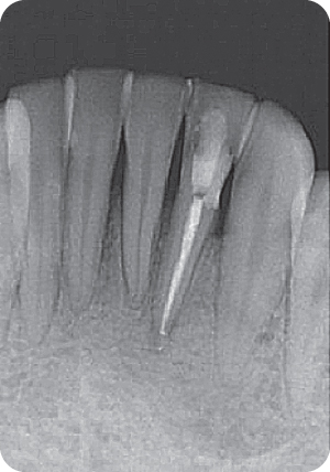 Illustration of Radiograph was taken after obturation of root canal.
