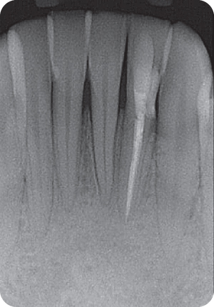 Radiograph of root canal.