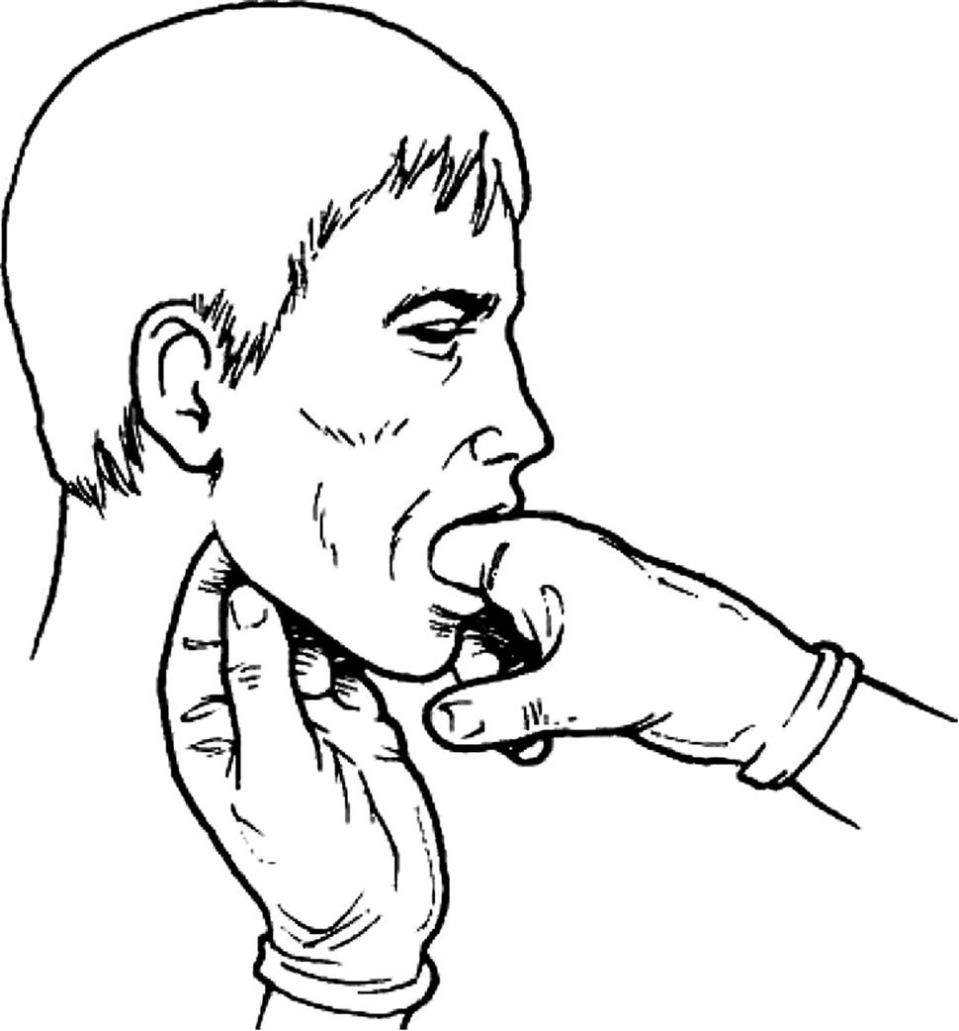 Line drawing of a face in side view with the index and middle finger of one hand intraorally and the same fingers of the other hand extraorally.