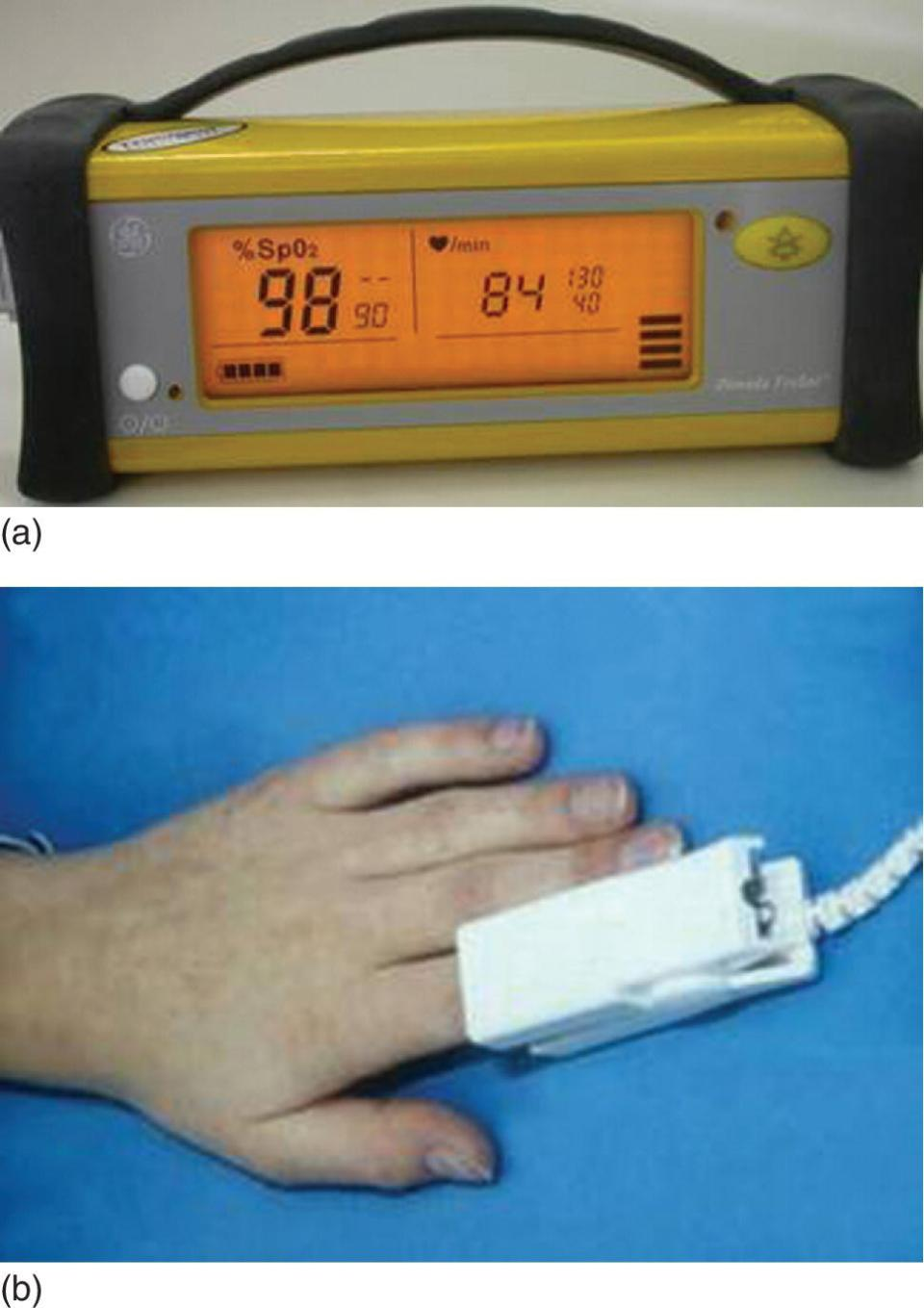 A pulse oximeter (top) and a hand with a probe attached to the index finger (bottom).