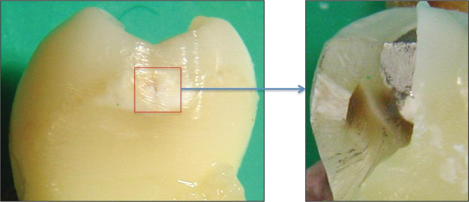 Two views of an early 'white spot' lesion displaying spread into dentine.