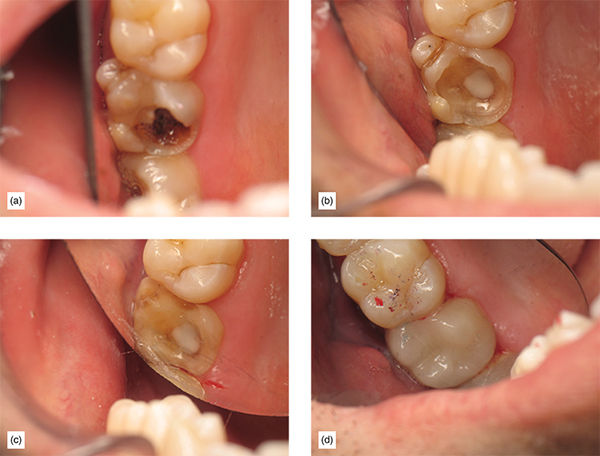 Photographs show teeth structure which is badly broken down and which is restored with help of supragingival bonded onlay and shows how healthy the teeth is after supragingival margin.