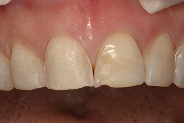 Photograph shows patient's upper jaw with prepared and unprepared porcelain veneer centrals.