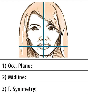 Diagram shows closed-up view of patient's front full face smile, occlusal plane, where use of facebow-mounted cast helps in laboratory communication and correction.