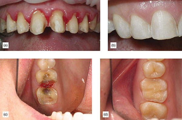 Photographs show how much easier and predictable isolation is when margins are with bleeding subgingival and with supragingival for anterior porcelain veneers and for bonded onlays.
