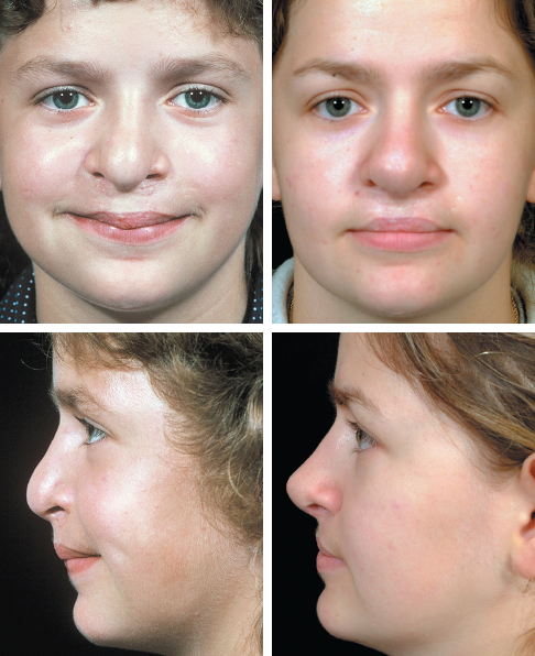 Definitive Rhinoplasty for Adult Cleft Lip Nasal Deformity