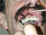 38 Uncommon Oral Cavity Malignancies
