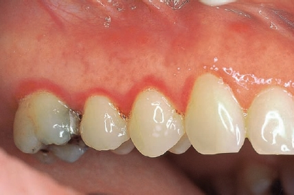 HIV Infection—AIDS | Pocket Dentistry