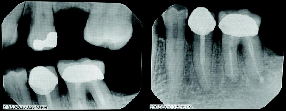 Radiographs of tooth #19 taken on January 20, 2016 at 6:23:40 PM (left) and 6:25:13 PM (right).
