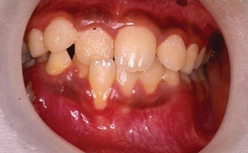 Retracted front view of deformed teeth.