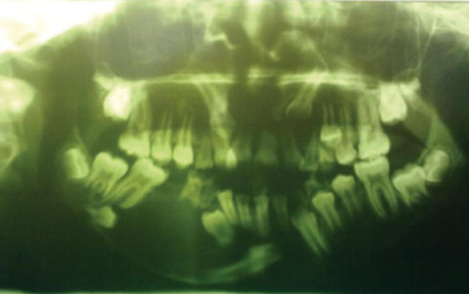 Panoramic radiograph of deformed teeth.