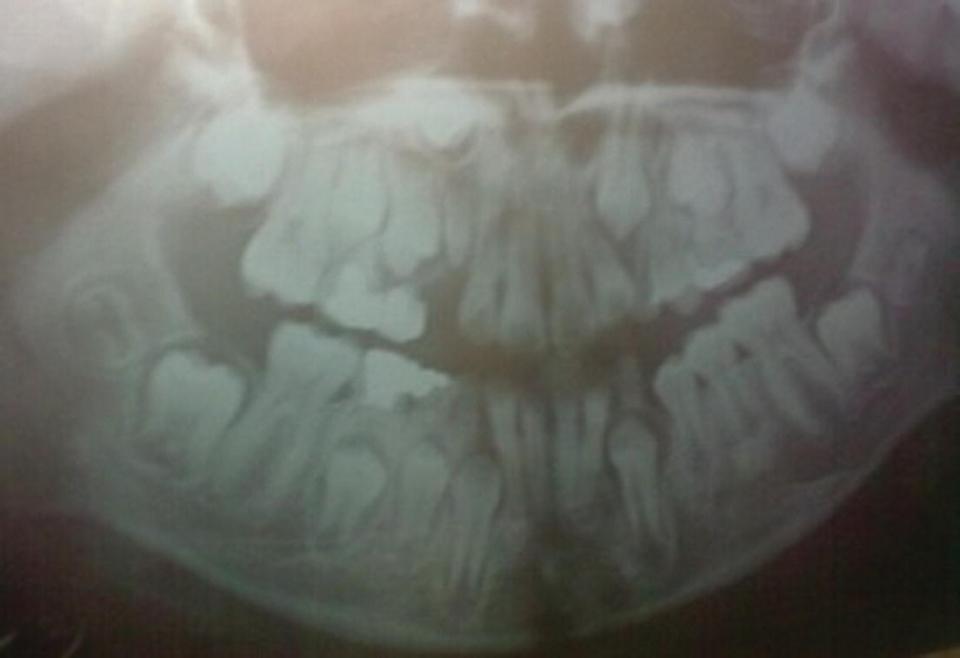 Panoramic radiograph displaying missing molars.