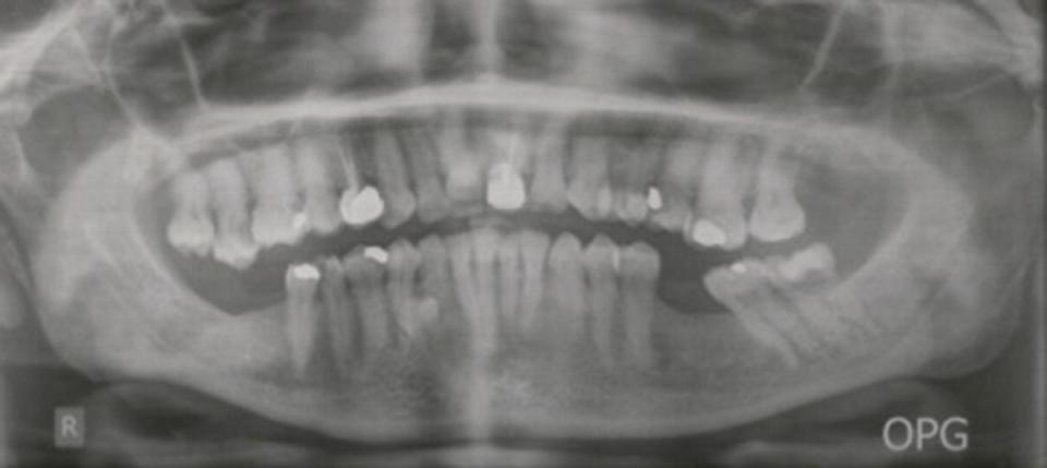 Panoramic radiograph displaying missing teeth.