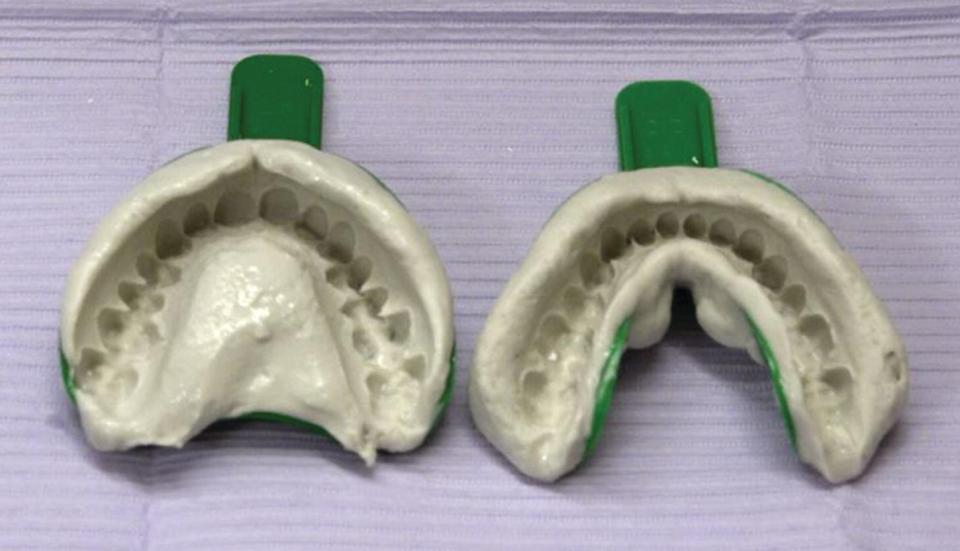 Maxillary and mandibular impressions on trays.