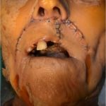 Modified karapandzic flap with radial forearm free flap to reconstruct a large composite upper lip and palate defect: Case report and anatomic study