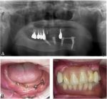 Clinical features of giant hybrid ameloblastoma of the mandible: A case report with long-term observation of natural growth before treatment